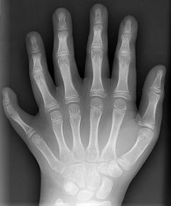 Polydactyl hand
